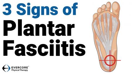 Plantar Fasciitis Thumbnail 2