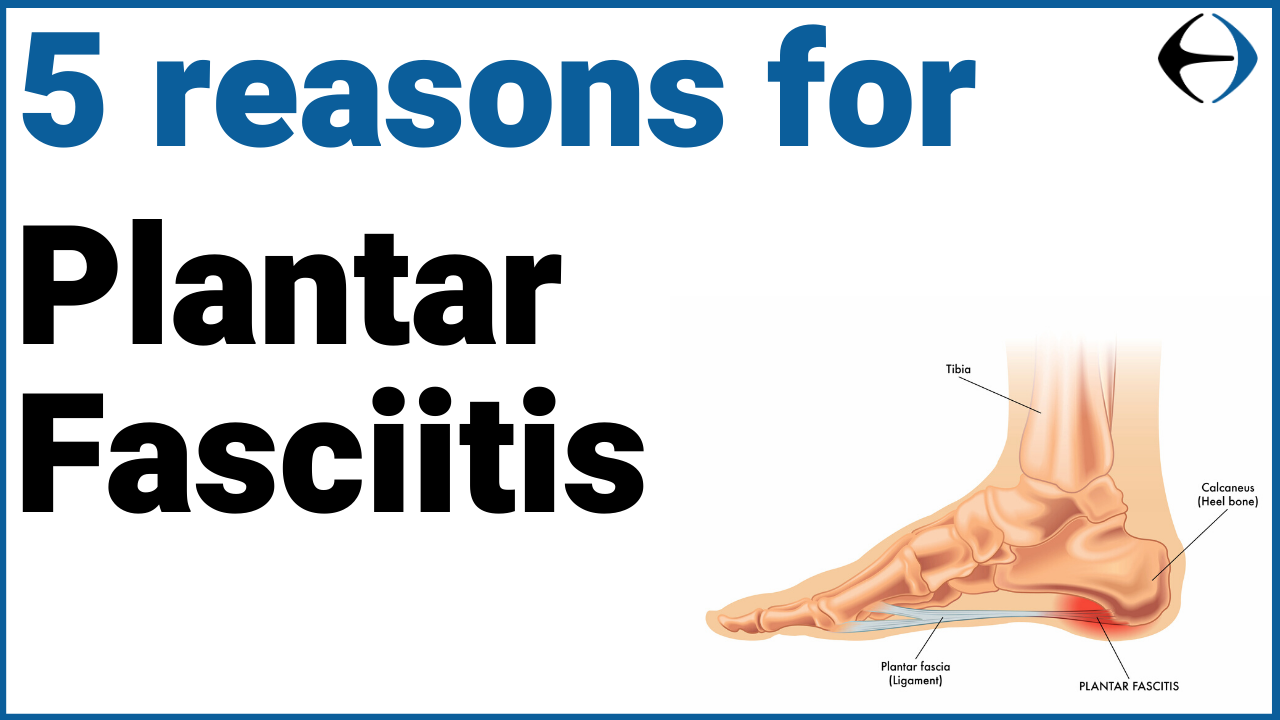5_reasons_for_plantar_fasciitis