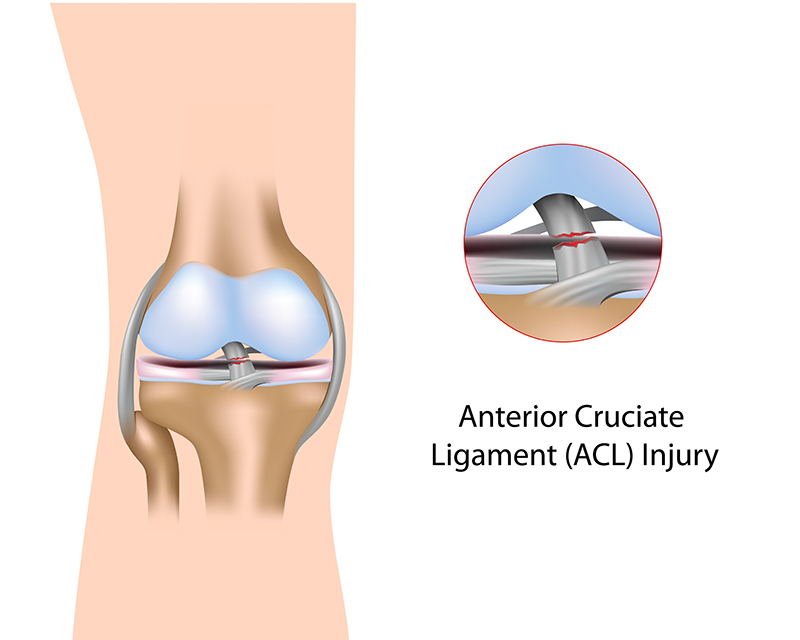 17503027 - anterior cruciate ligament injury