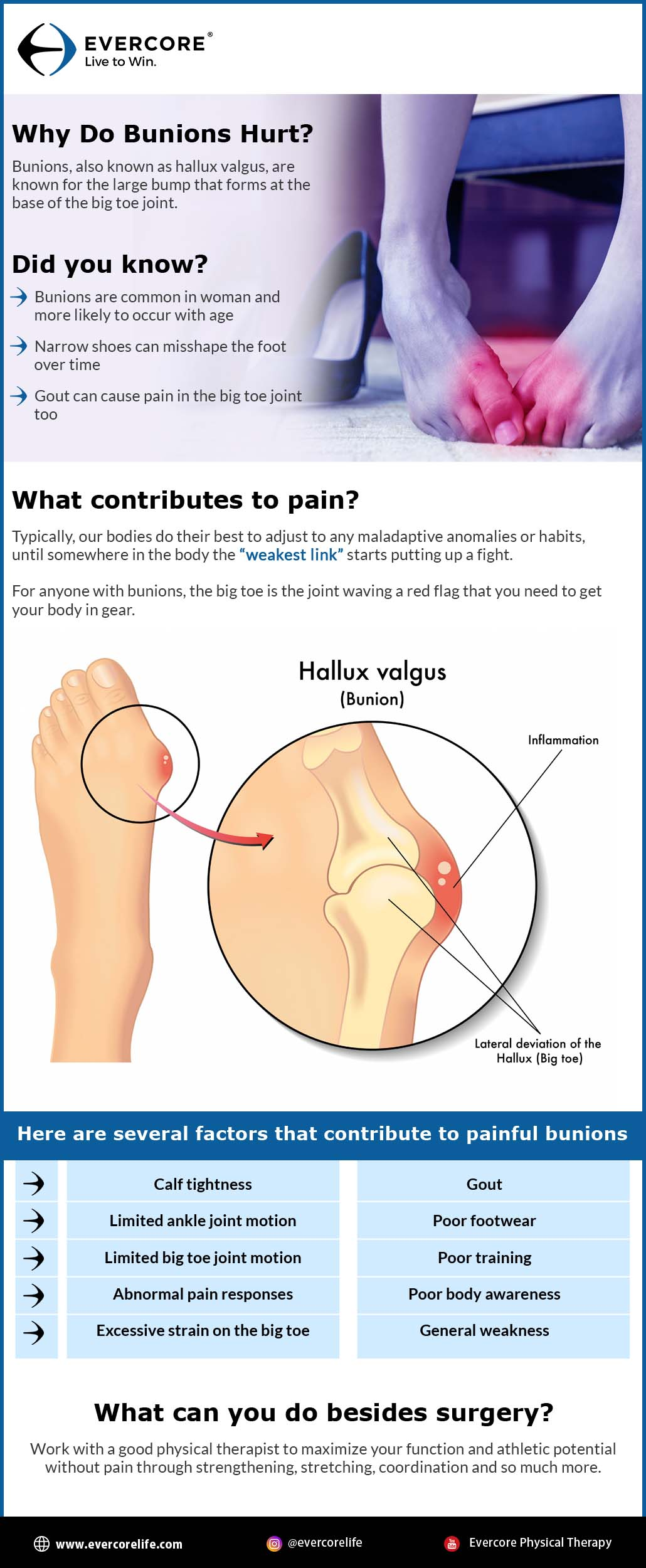 Why Do Bunions Hurt infographic