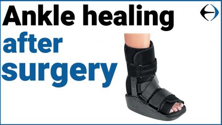 ankle healing thumbnail