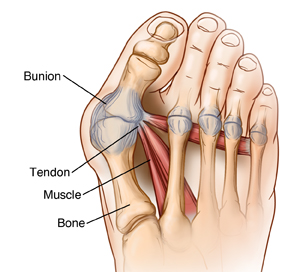 Dorsal forefoot showing bunion with loose joint capsule.  SOURCE: 60215A referenced from: http://www.beverlyhillsfootsurgery.com/aesthetic-bunion-correction/ http://libweb.allencc.edu/CPT0070.html http://eraofknowledge.blogspot.com/2008/11/hallux-valgus-deformity-bunion.html