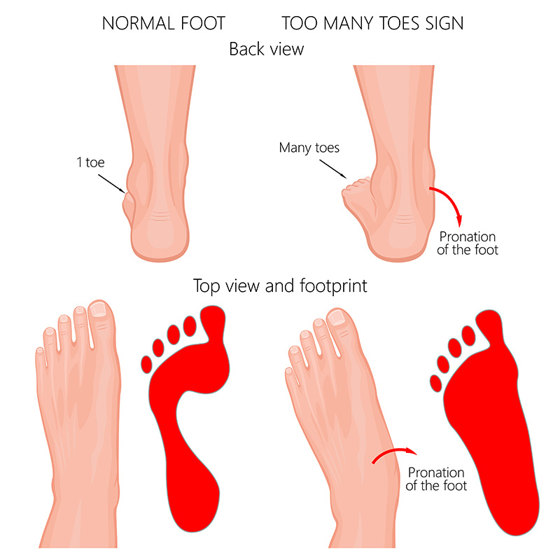 Vector illustration of the normal human foot and the foot with pronation or flatfoot, with hindfoot deformity. Too many toes sign.