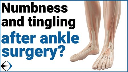 numbness tingling ankle thumbnail