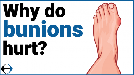 why do bunion hurt thumbnail