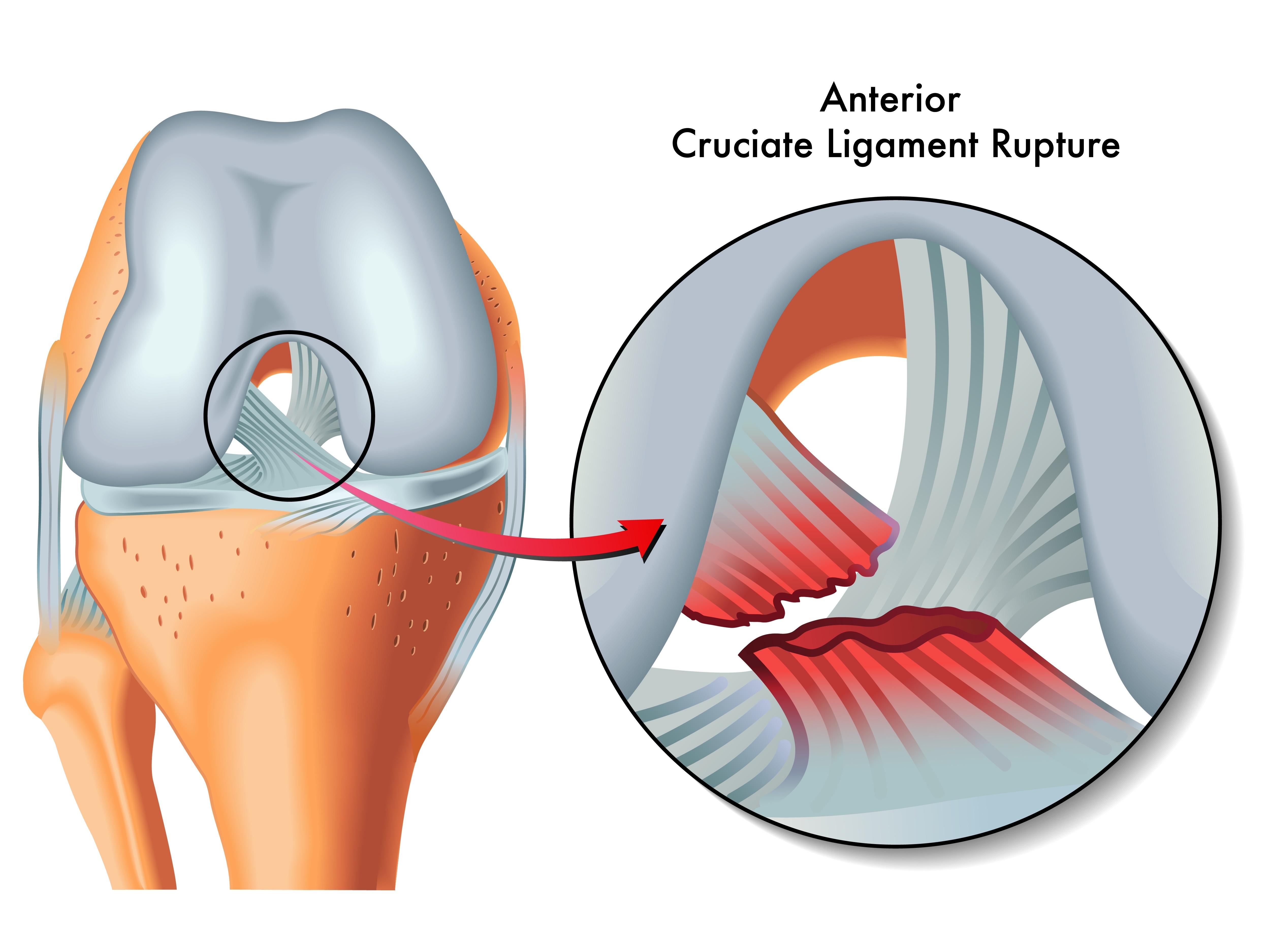 21961112 - anterior cruciate ligament rupture
