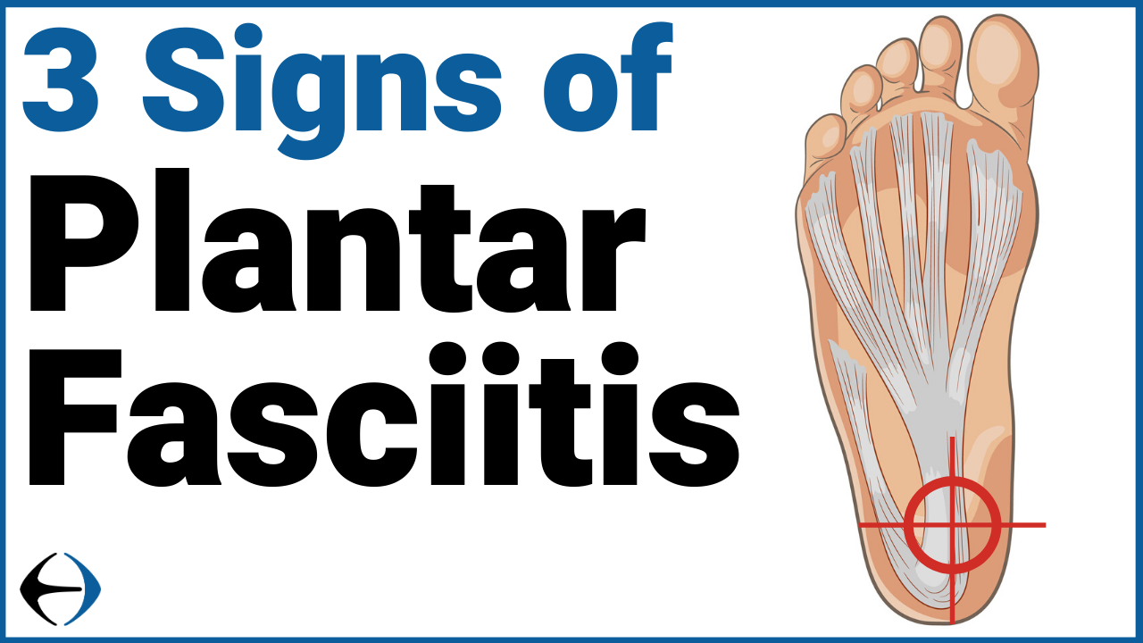 Copy of Plantar Fasciitis (2)